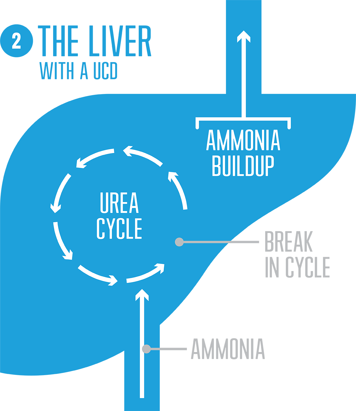 Urea Cycle Disorder diagram showing how break in cycle causes high ammonia levels